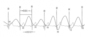 heart rate variability hrv monitoring