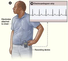 patient wearing cardiac monitor