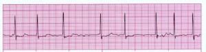 Atrial Fibrillation ECG strip 2